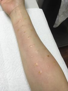 Sleep Savvy Allergy Test on Skin