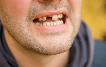 Meaning of loss of teeth dream